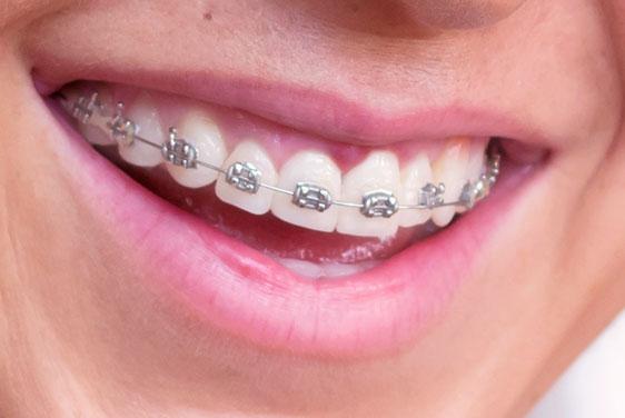 Ortodoncia en Medellín
