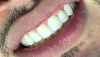 carillas-dentales-dentioral-2