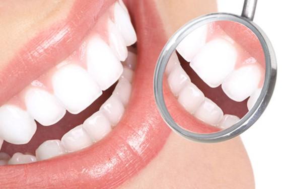 Limpieza Dental (Profilaxis y destartraje) con ultrasonido