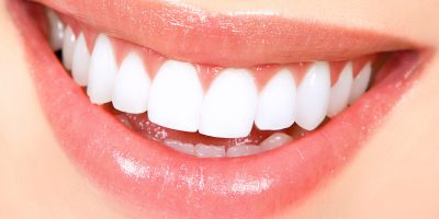 blanqueamiento-dental-21