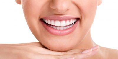 blanqueamiento-dental-22