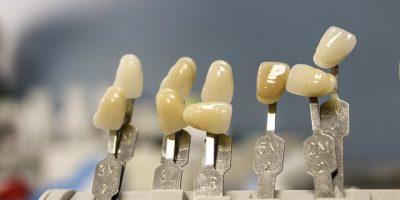 claves-exito-ortodoncia