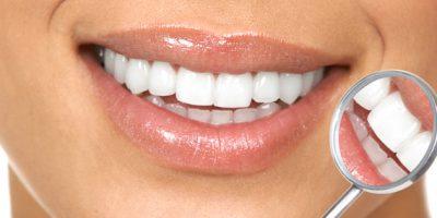 diseno-de-sonrisa-2