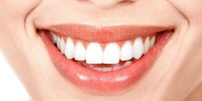 diseno-de-sonrisa-dentioral