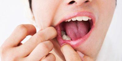 dolor-dental