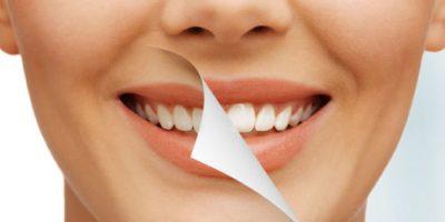 efectos-del-blanqueamiento-dental