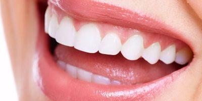 implantes-dentales-dentioral
