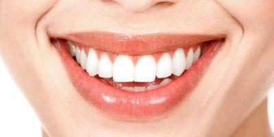 implantes-dentales-en-medellin
