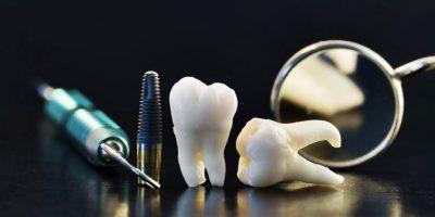 implantes-dentales-maedellin