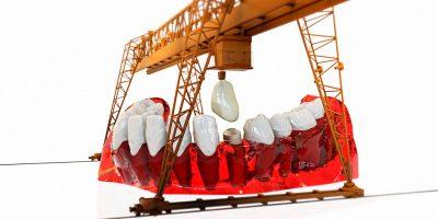 importancia-ortodoncia-1