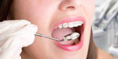 kit-de-ortodoncia