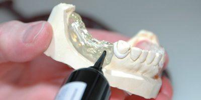 las-protesis-dentales
