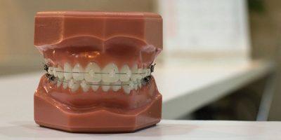 ortodoncia-dentioral-1