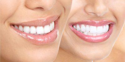 ortodoncia-diseno-de-sonrisa
