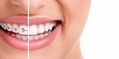 ortodoncia-diseno-sonrisa-1024x429