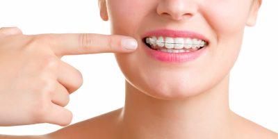 ortodoncia-en-medellin-2