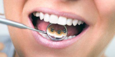 ortodoncia-en-medellin-dentioral-2