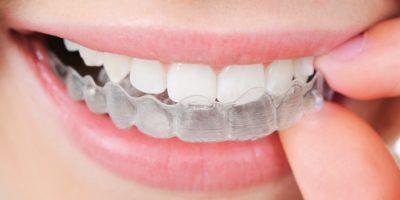 ortodoncia-en-medellin-dentioral