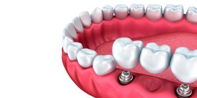 protesis-dentales-medellin