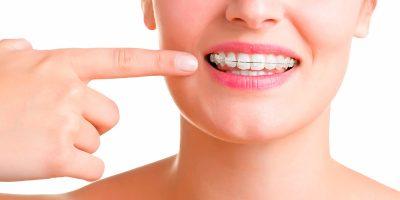 tener-ortodoncia-1