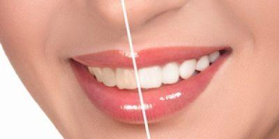 tipos-de-blanqueamientos-dentales