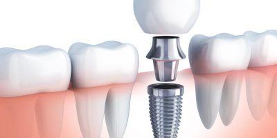 tipos-de-implantes-dentales