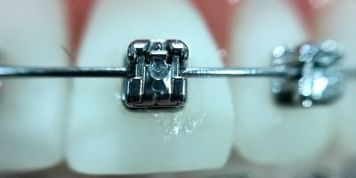 tipos-ortodoncia-medellin